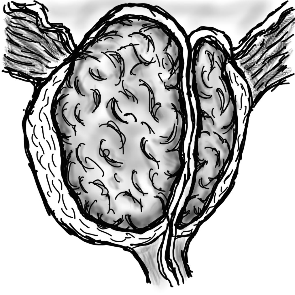 Ipertrofia prostatica. Si nota l'adenoma prostatico in centro.